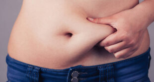 Woman squeezing belly fat around belly button