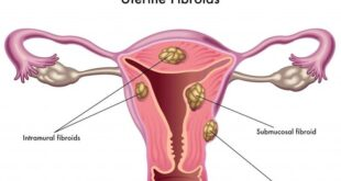 Treating Uterine Fibroids