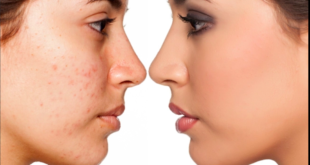 ACNE-TREATMENT-GIRLS-FACE-GLOW