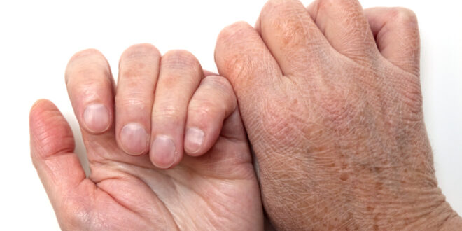 Dry skin on hands, back and front