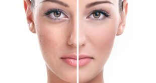 Effective-Home-Remedies-The-Skin