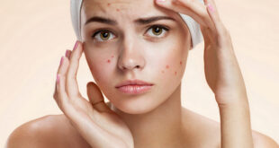 best-acne-treatments-laser-congested-skin