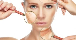 facts-about-dry-skin
