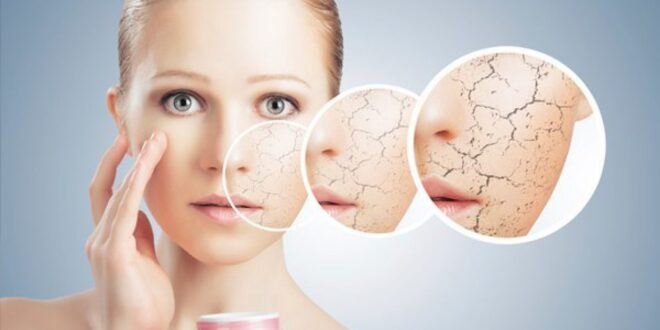 women-with-dry-skin-patches