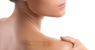 How-To-Get-Rid-Of-Old-Scar Tissue After Surgery